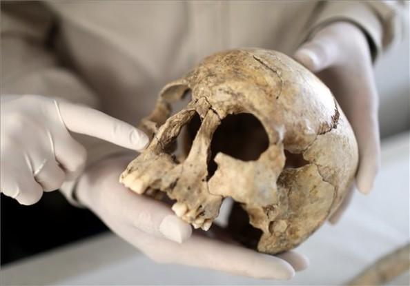A lepra legkorábbi nyomai egy koponyán (MTI Fotók: Mohai Balázs)